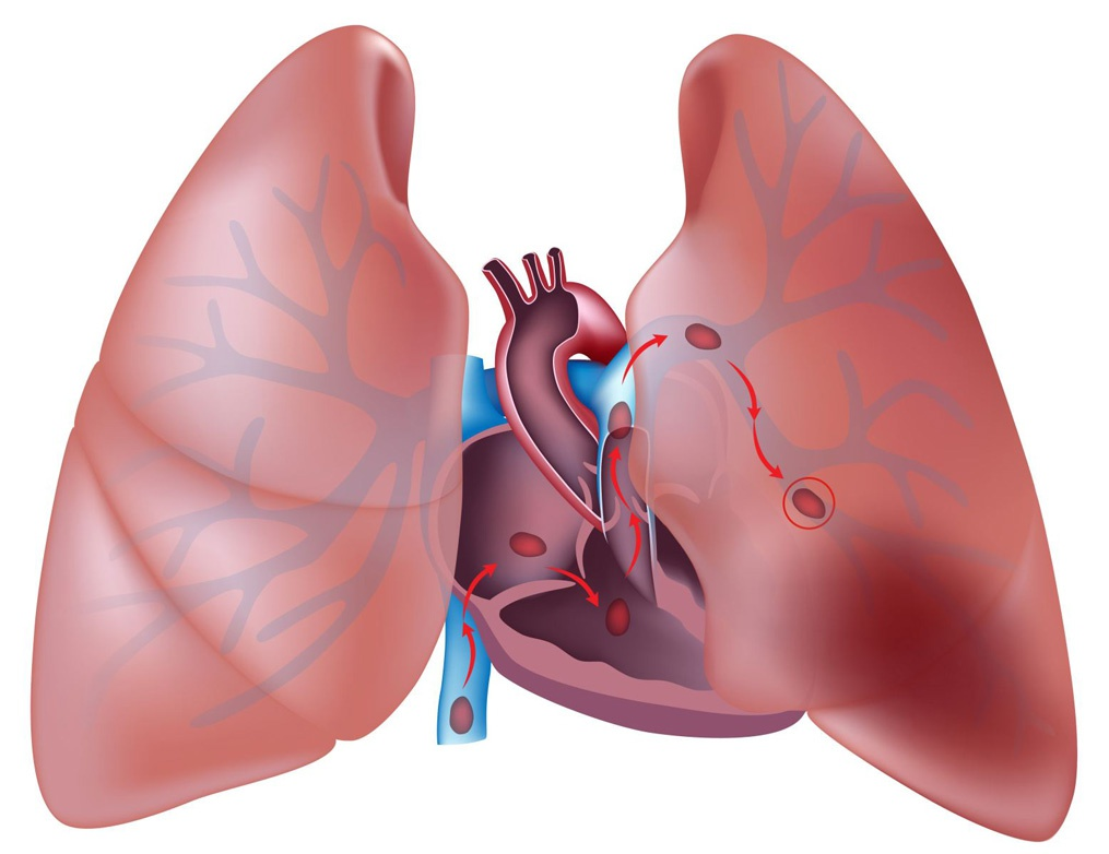 Попадание тромба в легочную артерию