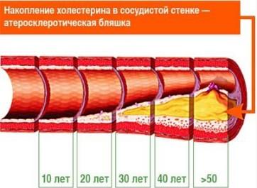 Накопление холестерина в зависимости от возраста человека
