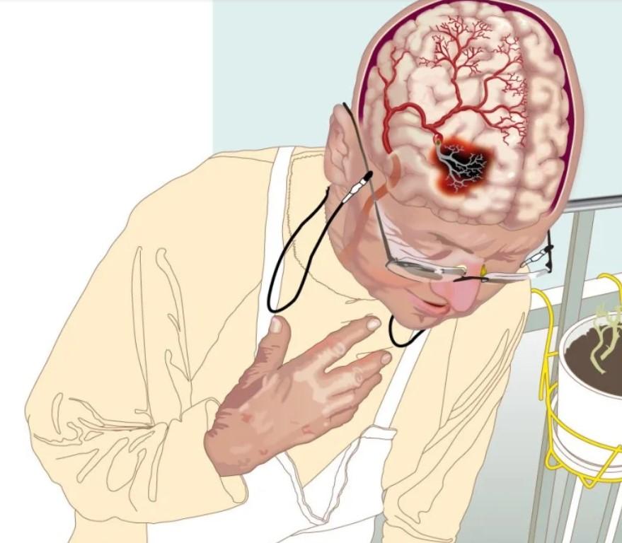 Не пропустите первые признаки инсульта