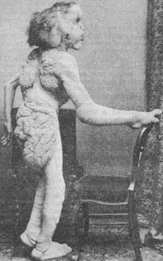 Джозеф Меррик в 1889 году