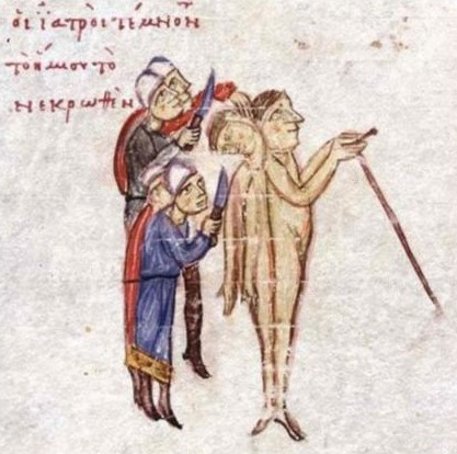 Византийская книжная миниатюра, изображающая операцию по разделению близнецов из Армении