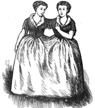 Сиамские близнецы Мэри и Элайза