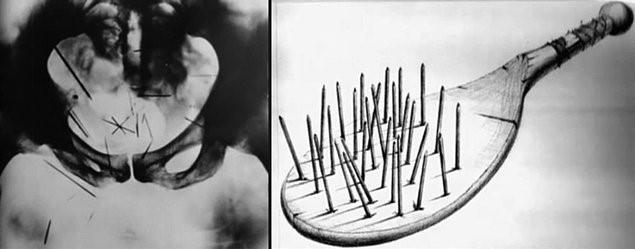 Рентгеновский снимок маньяка и лопатка, при помощи которой он пытал себя